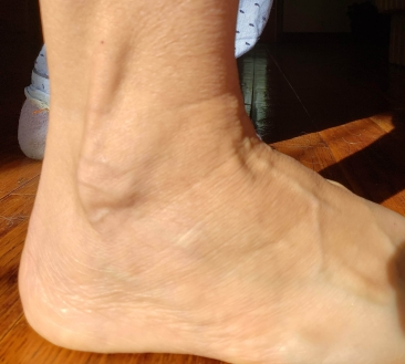 Ankle exterior