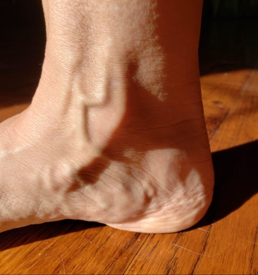 Ankle interior